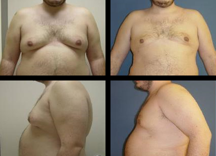 causes of weight loss and bloating