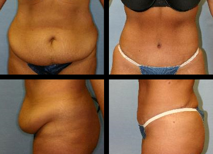 abdominoplasty Grants Pass OR