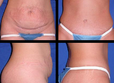 abdominoplasty Meford OR