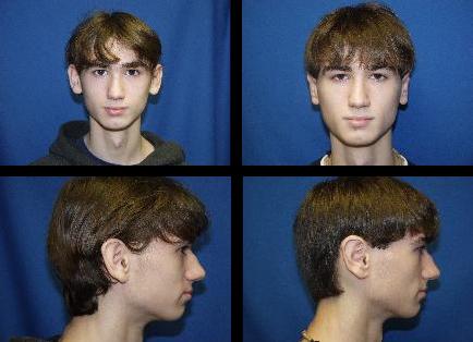 Ear Surgery Ashland, OR
