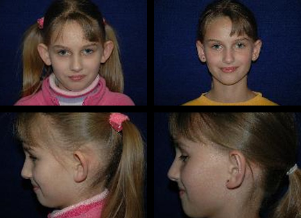 Ear Surgery Medford, OR