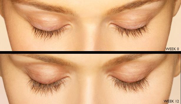 Thinning Eyelashes Ashland, OR
