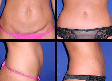 Abdominoplasty, Tummy Tuck in Medford Oregon